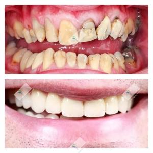 Beljenje zuba gelom